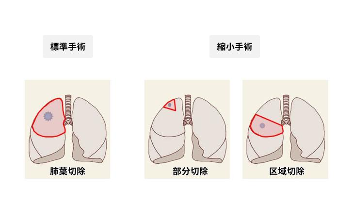 完全胸腔鏡下手術が適応となる主な切除術