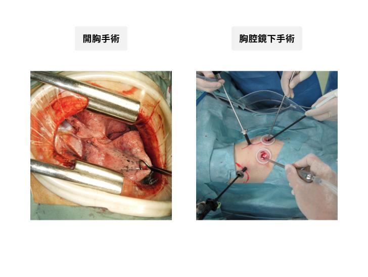 胸腔鏡下手術と完全胸腔鏡下手術の違い