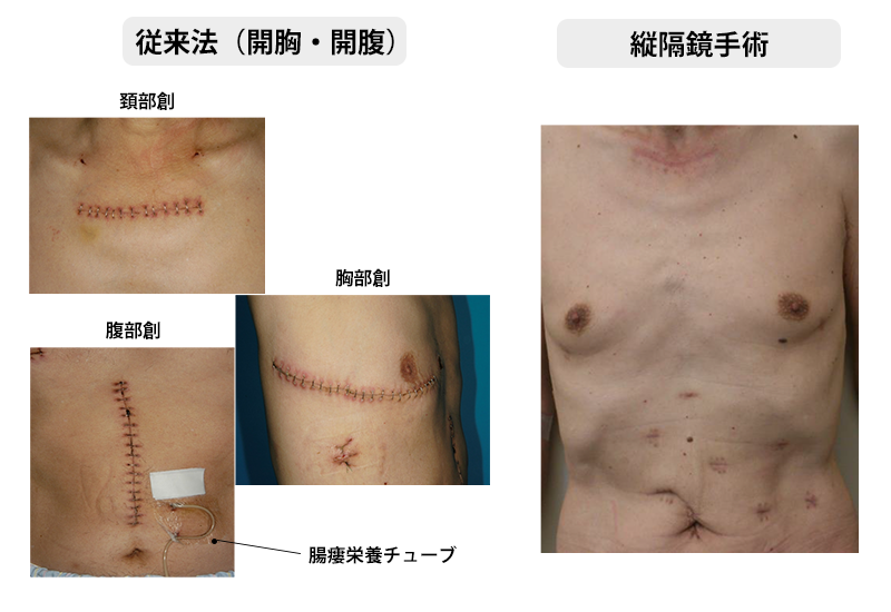 術後の傷痕