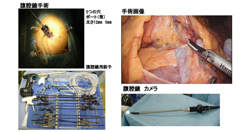 腹腔鏡手術の様子