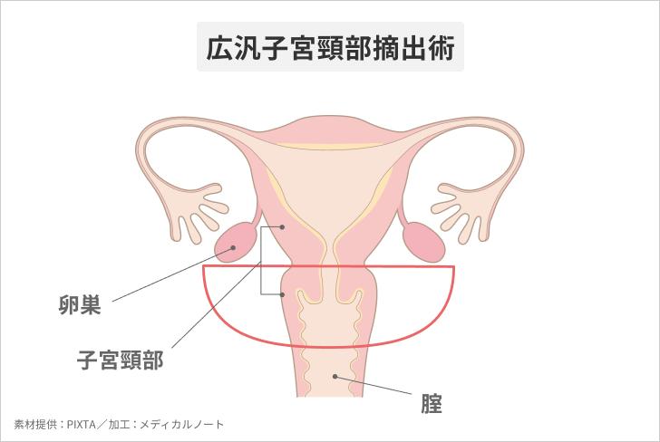 腹腔鏡下での広汎子宮頸部摘出術