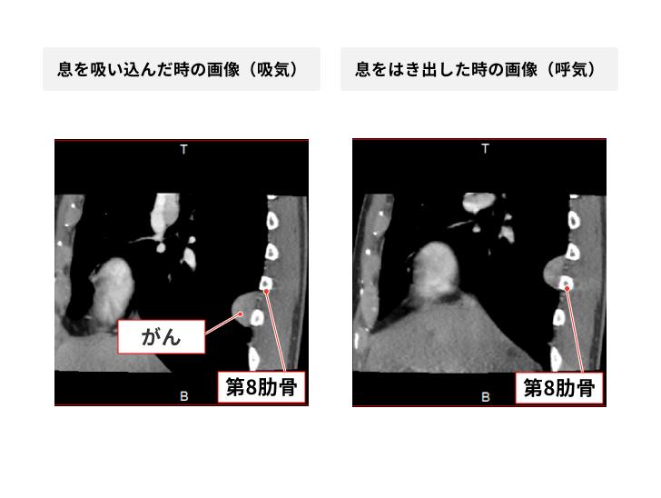 4D-CTの症例画像