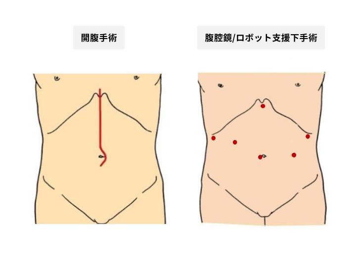 手術創の比較
